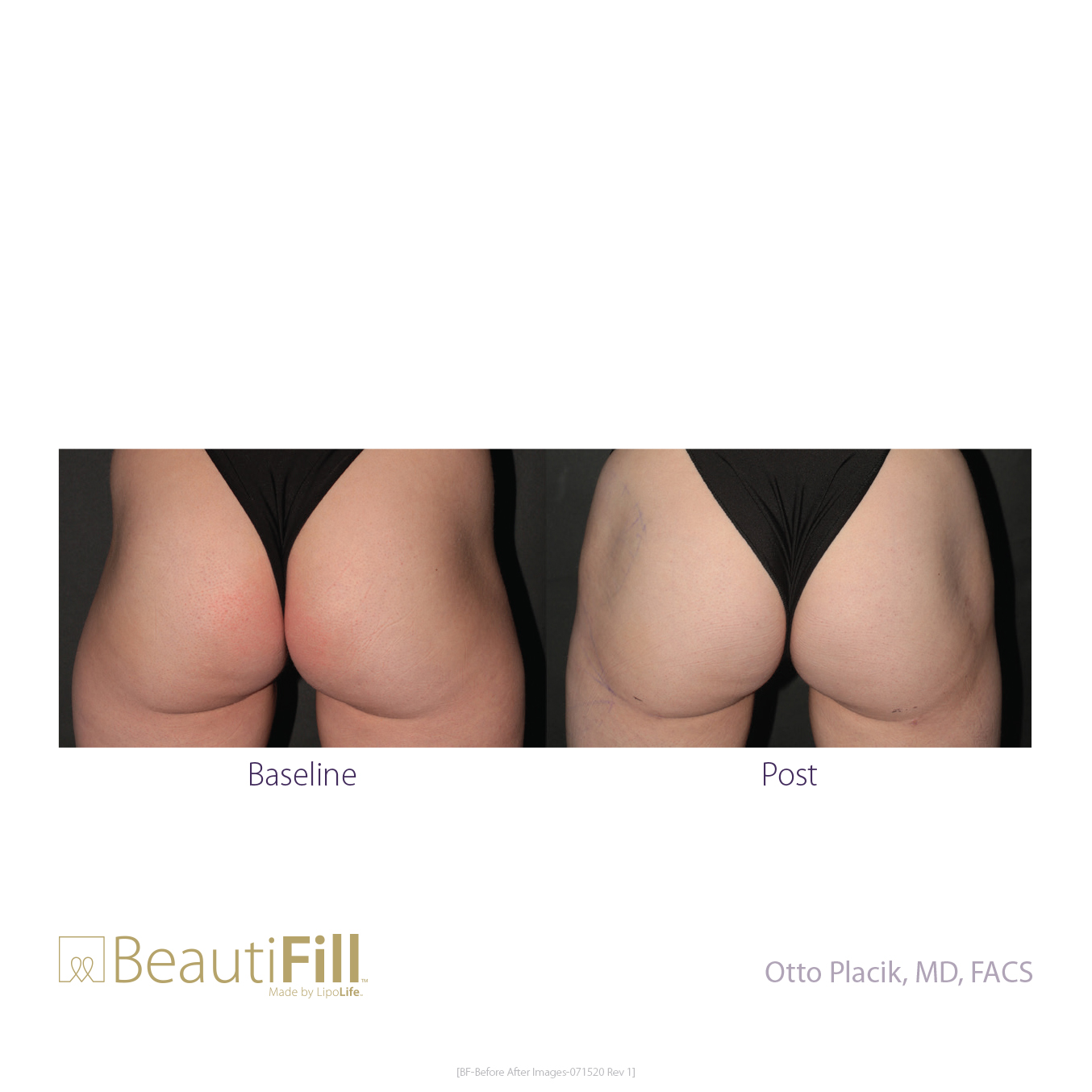 BeautiFill-Before and After B2B 082820-5